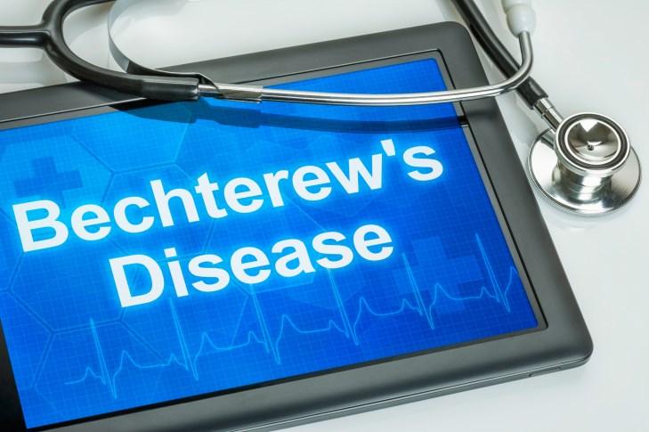 Ankylosing Spondylitis: New Guidelines Developed for Treatment