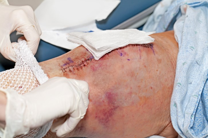 TXA Safe, Effective in Reducing Blood Loss in Joint Replacement Surgery