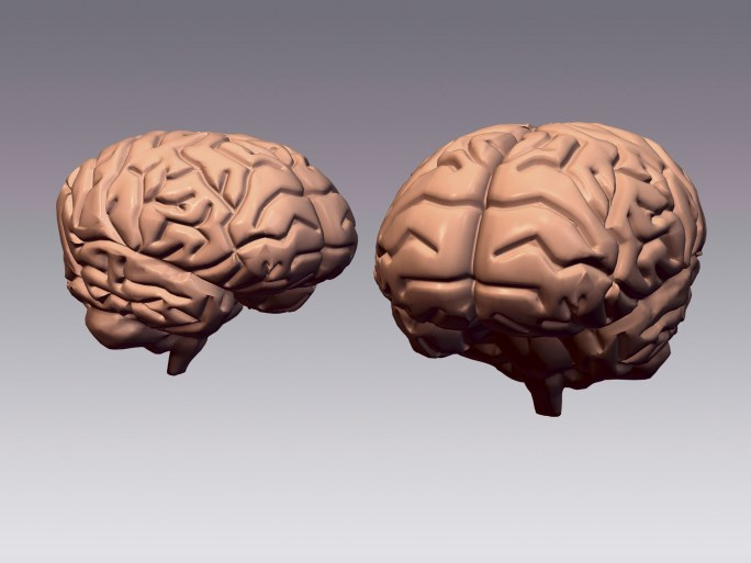 Brain Plasticity in Patients With Complex Regional Pain Syndrome