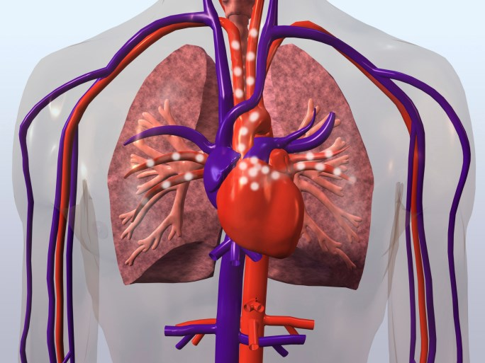 This study found two-fold higher rates of acute MI, coronary death, heart failure, cardiac arrest and PAD in RA patients.