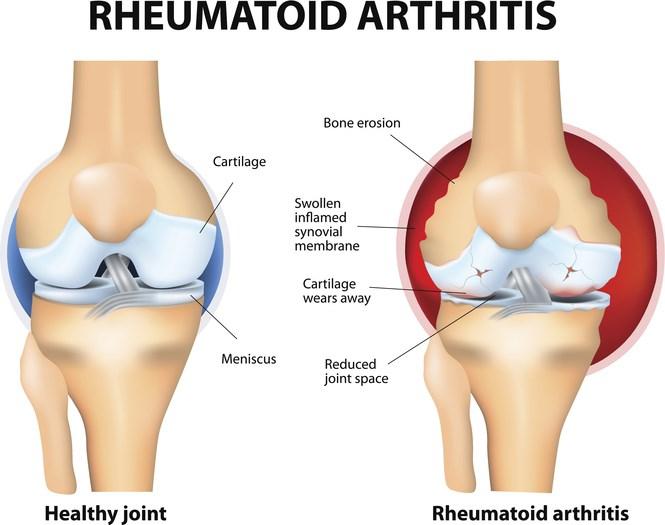 Adalimumab exerts its anti-inflammatory effects through 2 mechanisms