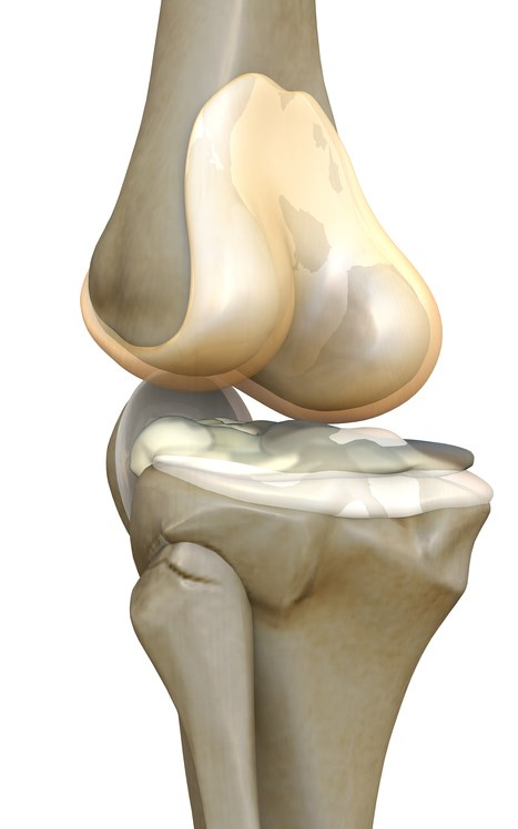 Osteoarthritis pain results from deterioration of cartilage at articulations