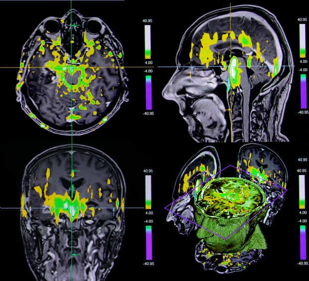 Understanding the Mechanisms of Depression With Neuroimaging