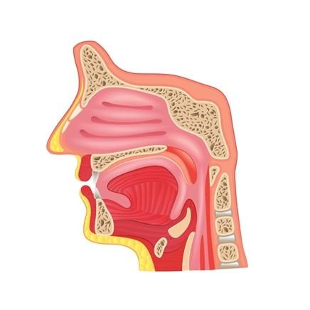 Intranasal Sumatriptan for Migraine
