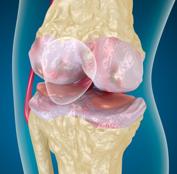 Osteoarthritis of the knee is a major cause of chronic pain and disability and can lead to cartilage degeneration with resultant joint pain and stiffness.