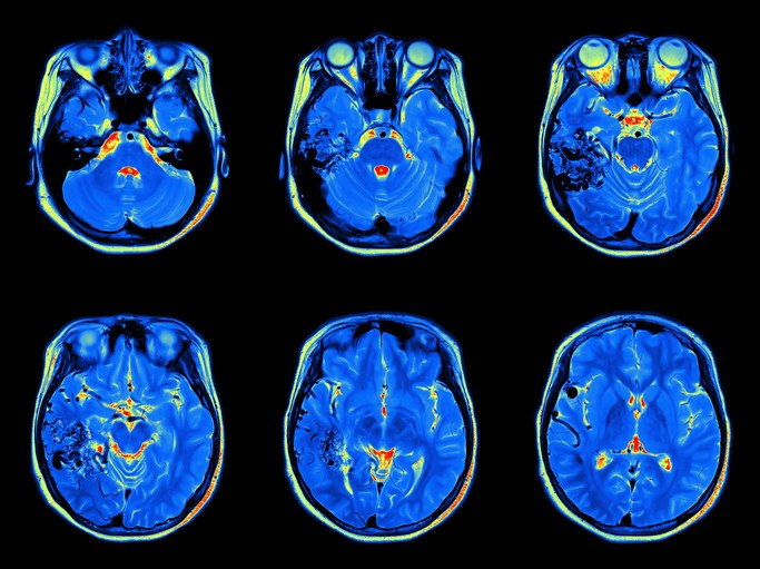 Functional MRI studies have identified neural networks involved in the sensory-discriminative aspect of pain.