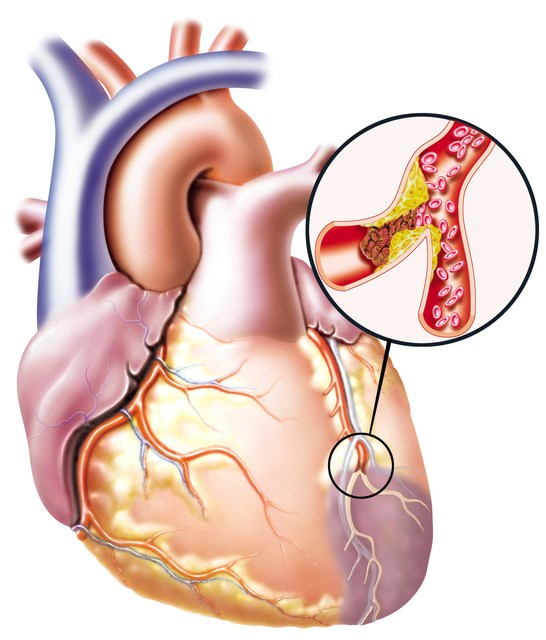 Assessing Risk for Cardiovascular Disease in Rheumatoid Arthritis