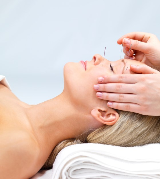 Spinal cord stimulation, neurotechnology, acupuncture, neurostimulation: all effective in treating migraine, headaches.