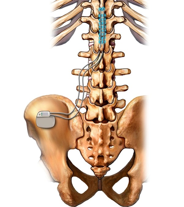 Neural Targeting Spinal Cord Stimulation Superior in Treatment of Axial Low Back Pain
