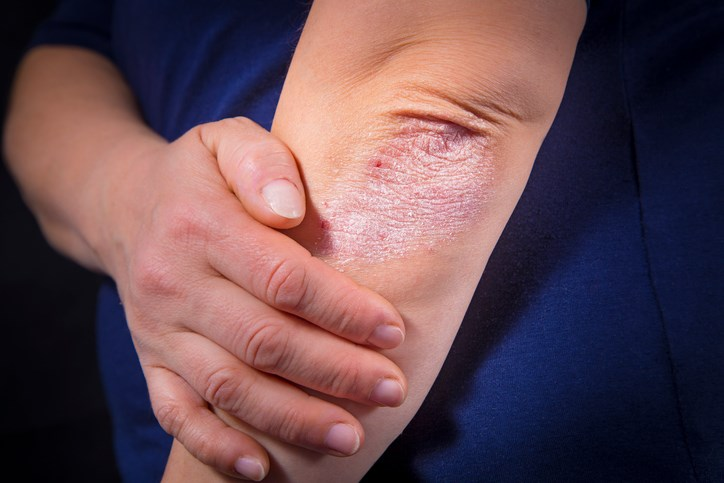Ixekizumab Treatment Improves Psoriasis Symptoms