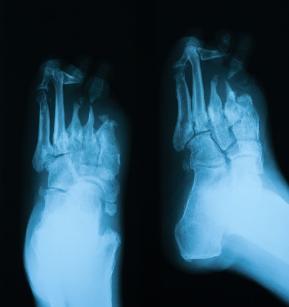Symptoms of diabetic peripheral neuropathy include lower-extremity weakness, in addition to tingling, pain and burning.