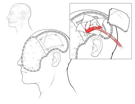 The Risks and Benefits of Decompressive Craniectomy in Traumatic Brain Injury