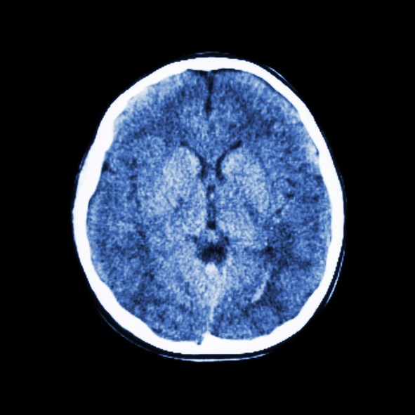 Symptoms of persistent mild-to-moderate TBI have tremendous overlap with those of PTSD.