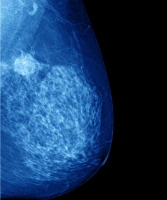 COX-2 Inhibition to Reduce Persistent Pain After Breast Cancer Surgery?