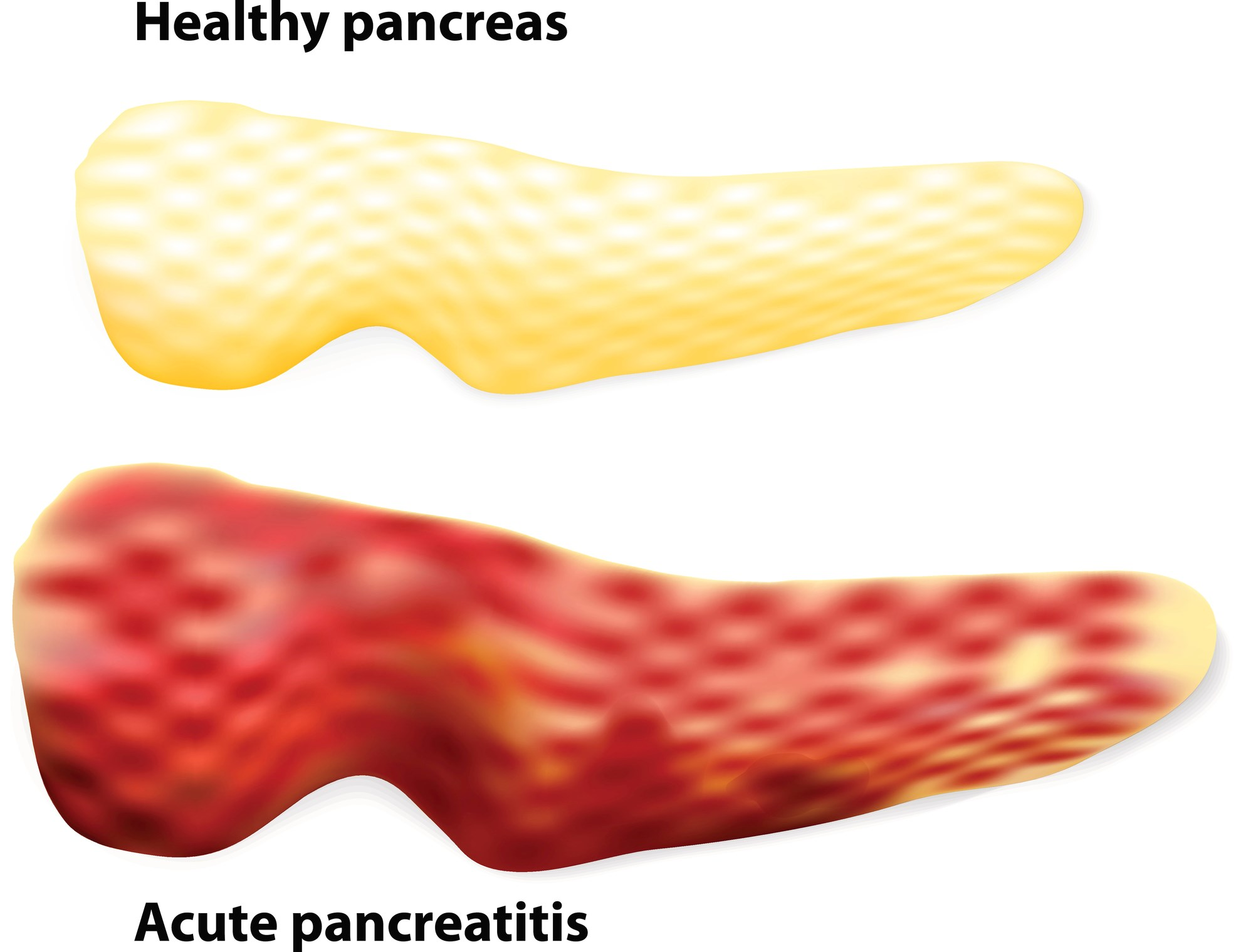 Optimized Treatment for Pain Relief in Chronic Pancreatitis