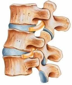 Alleviating Chronic Back Pain With Basivertebral Nerve Ablation
