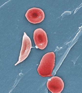 HbA1c levels were significantly lower than in participants without sickle cell trait. <i> Photo Credit: CDC/Sickle Cell Foundation of Georgia: Jackie George, Beverly Sinclair. </i>