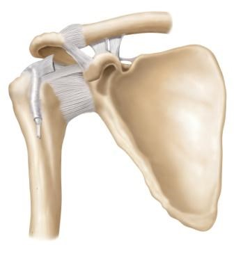 It is estimated that primary adhesive capsulitis affects 3% to 5% of the general population, with rates as high as 20% among individuals with diabetes.