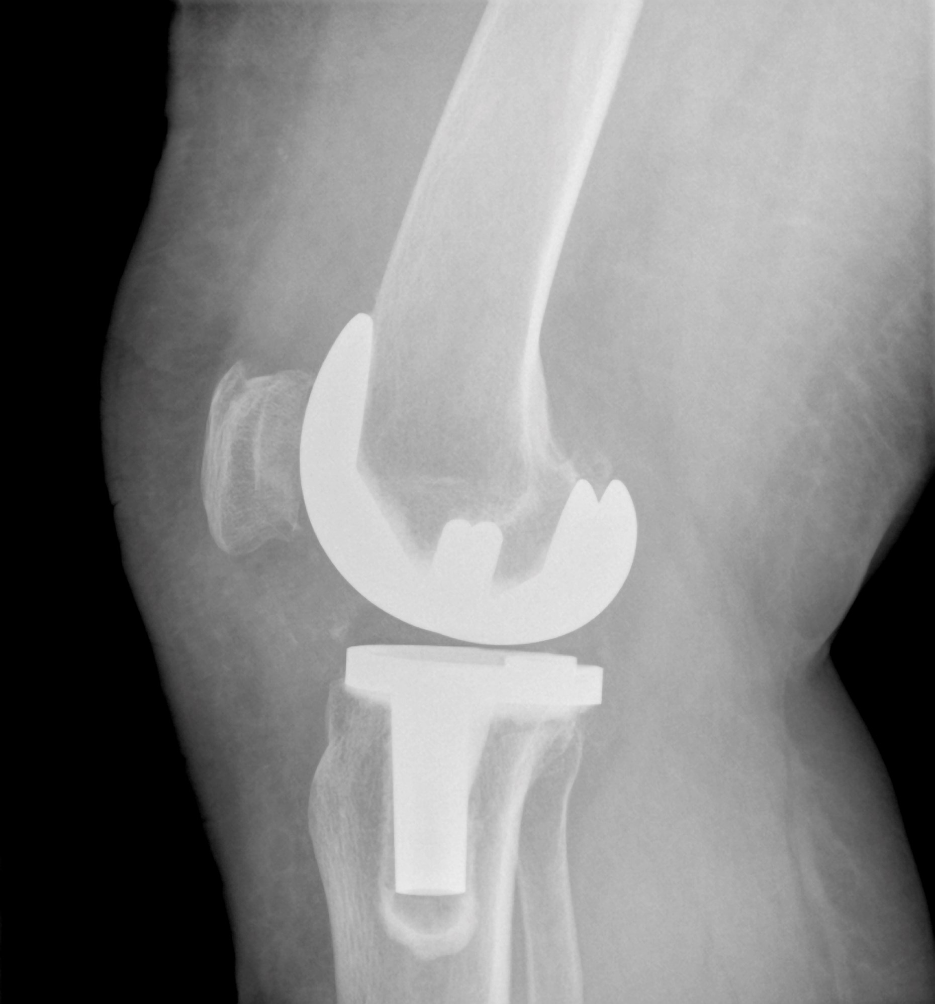 Joint Replacement Surgery Outcomes Improved With SSRIs