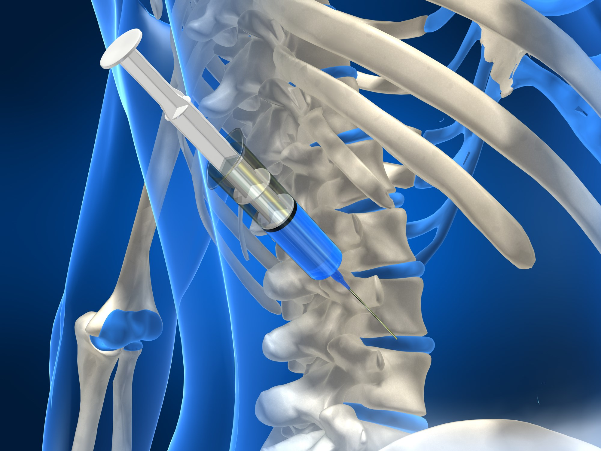 Intradiscal Steroid Injection Provides Short-Term Relief From Low Back Pain