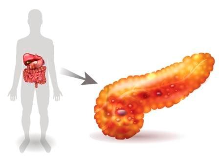 Irritable Bowel Syndrome Medication Linked to Pancreatitis