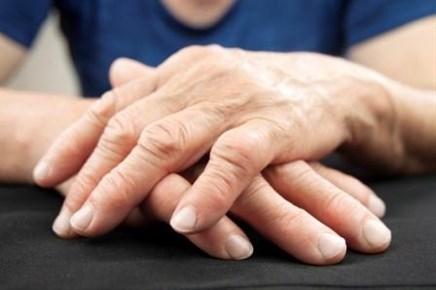 Rheumatoid Arthritis: Risk Factors, Diagnosis, and Treatment