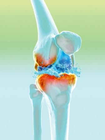 Novel Hyaluronan Injection Shows Superior Reduction in Osteoarthritis Knee Pain, Stiffness