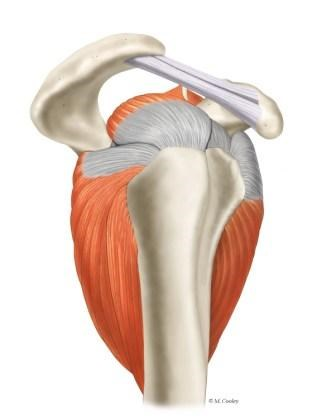 Up to 20% of shoulder pain is associated with rotator cuff calcific tendinopathy.