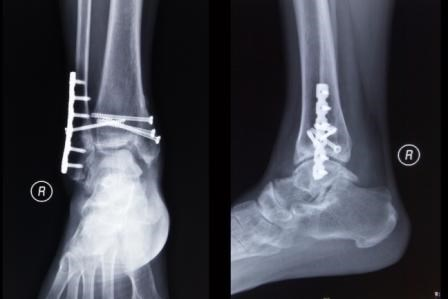 Psychological Factors, Not Opioid Use, Linked with Disability After Fracture Surgery