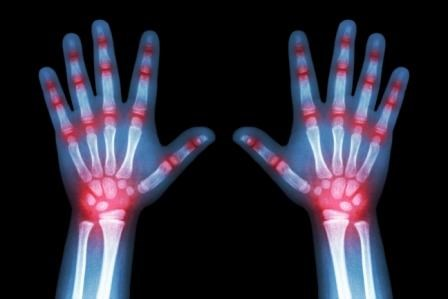 Juvenile Idiopathic Arthritis: Risk Factors for Infection of Biologic Therapy