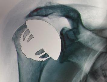 Liposomal Bupivacaine Effective for Shoulder Arthroplasty-Related Pain
