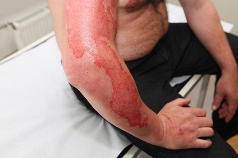 Peripheral nerve decompression has been found to be an effective strategy to relieve symptoms associated with burns.