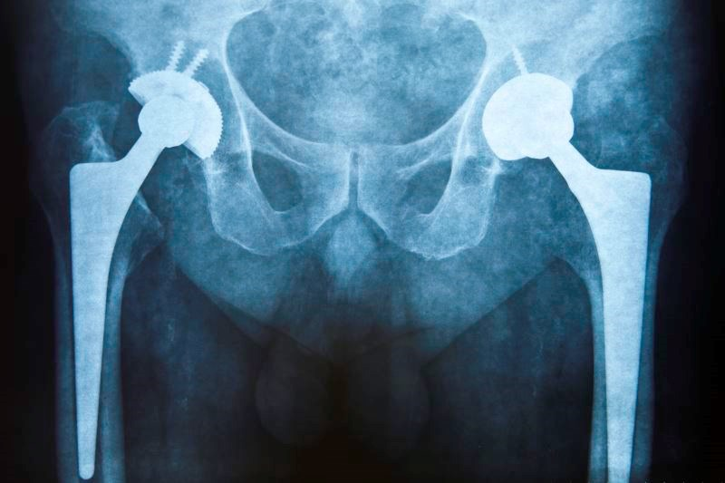 Peripheral Nerve Blocks Reduce Postoperative Pain After Hip Replacement