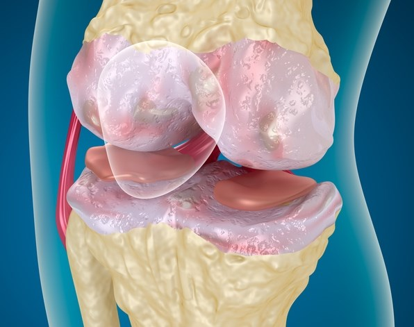 Cooled Radiofrequency Ablation Relieves Osteoarthritis-Related Knee Pain