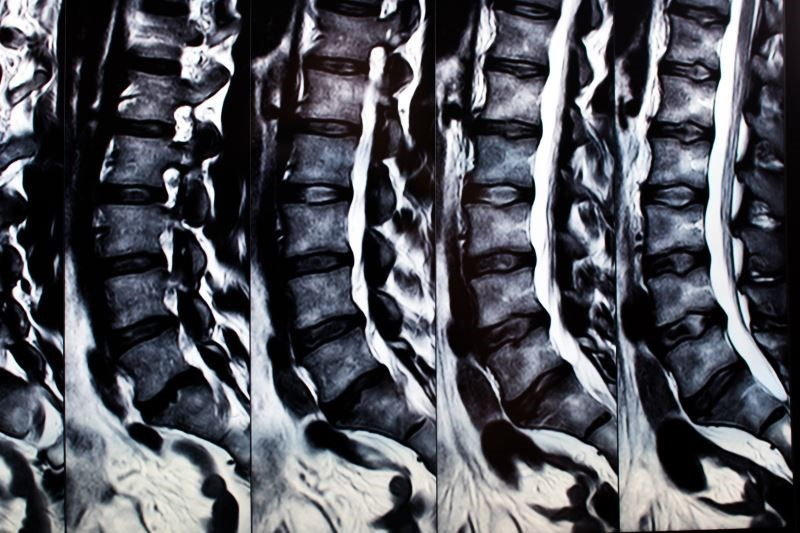 Chemonucleolysis With Radiopaque Gelified Ethanol May Be Effective Analgesic for Chronic Radicular Pain