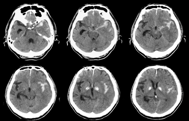 Subarachnoid Hemorrhage Linked to Key Clinical Characteristics of Headache