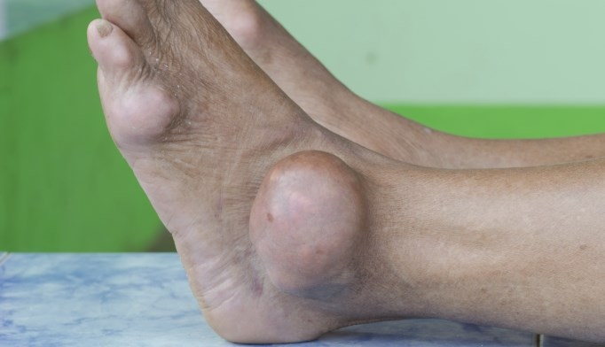 An immunotherapy treatment for gout is being tested for safety and efficacy.