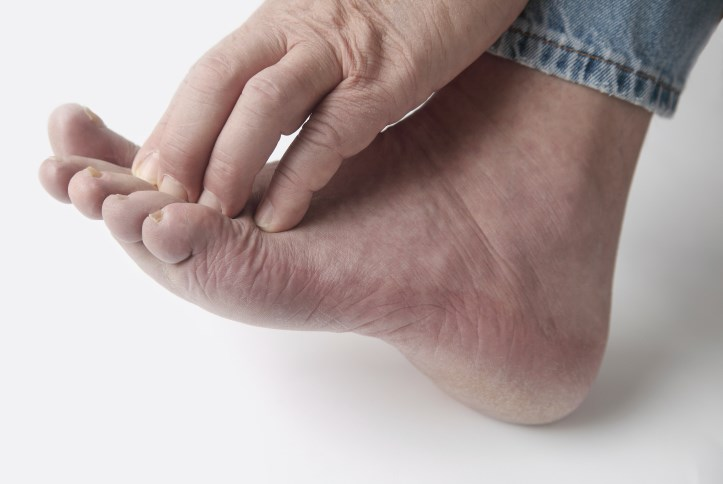 A nonviral gene therapy may relieve symptoms of painful diabetic neuropathy.