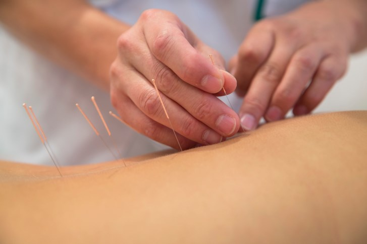 Some patients undergo acupuncture to treat arthritis.