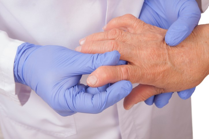 Neuropathic Pain Often a Factor in Rheumatoid Arthritis