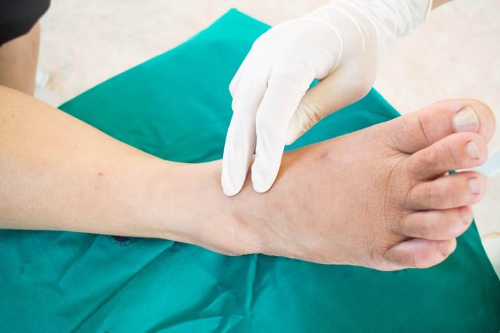 Peripheral Neuropathies: A Primer