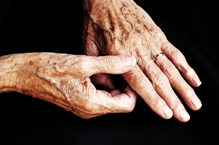 The mosquito-borne chikungunya virus causes joint pain and swelling similar to rheumatoid arthritis.