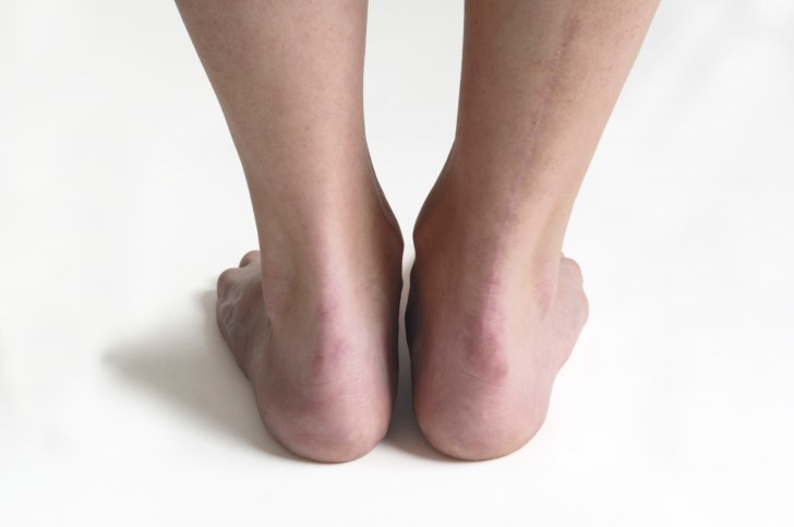 About one-quarter of Achilles tendon ruptures are missed during doctors' initial examinations.