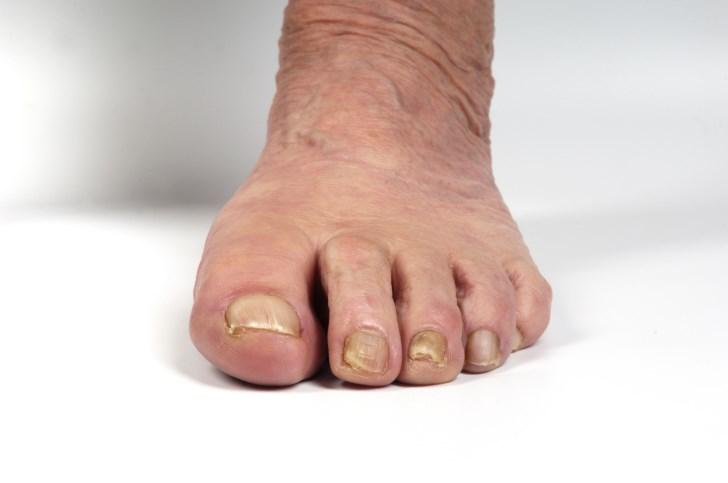 Rheumatoid Arthritis Linked to Neuropsychiatric Symptoms
