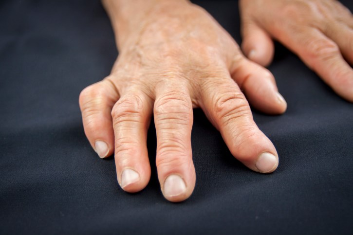 Quality of Life in Rheumatoid Arthritis Improved With Filgotinib