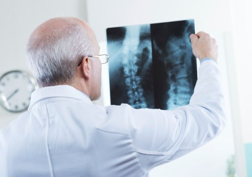 MAPCs Reduce Immune System Damage After Spinal Cord Injury