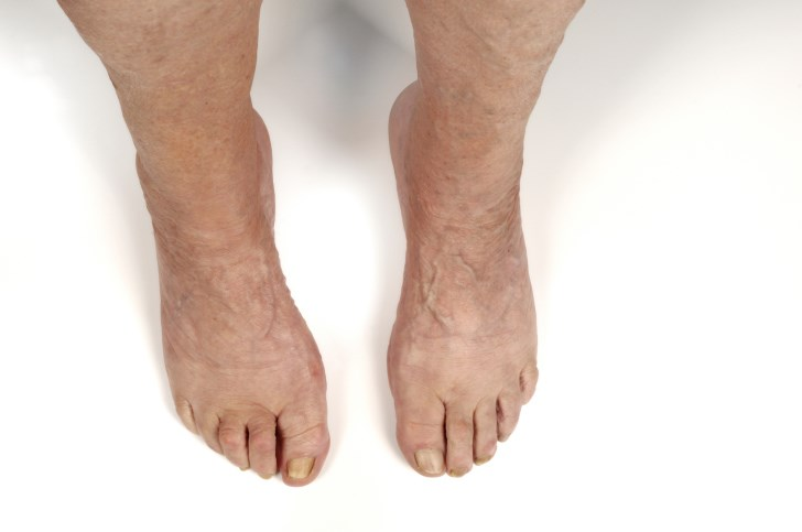 Can Foot Synovitis in RA Help Predict Unstable Long-Term Remission?