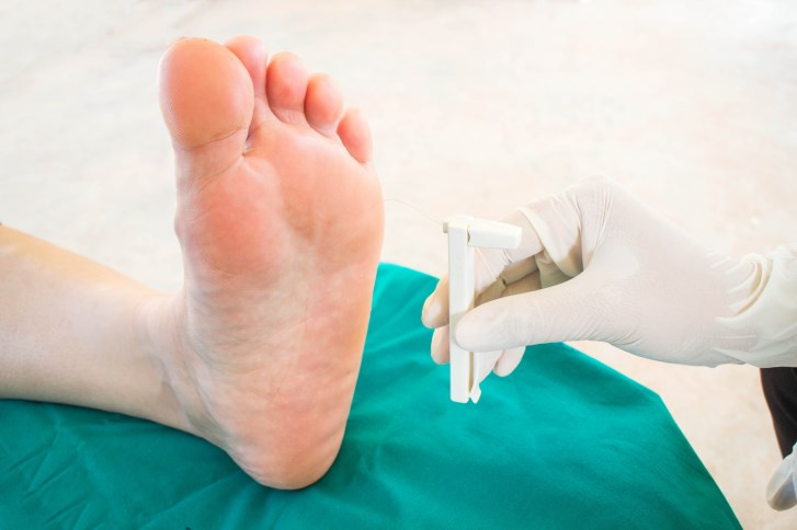 Study: New Understanding of Diabetic Peripheral Neuropathy