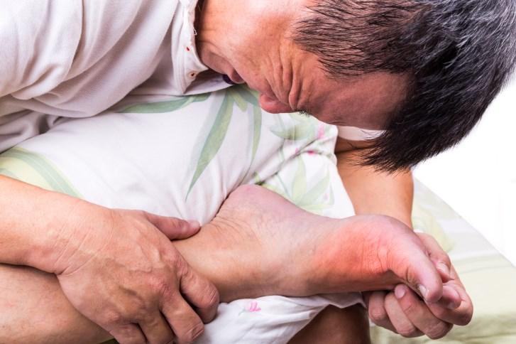 Post-Op Gouty Arthritis Described in Patient Taking Thiazide