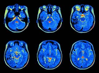 neuroimaging applications in chronic pain management
